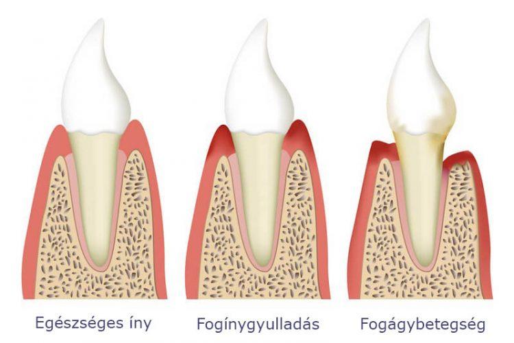 parodontitisz