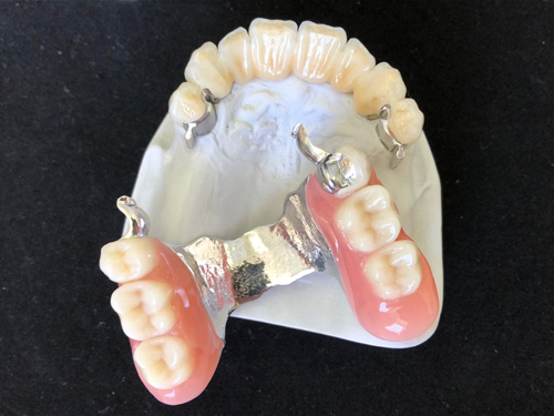 csúsztatós fogsor